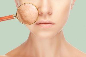 Tout ce qu'il faut savoir sur le masque de grossesse