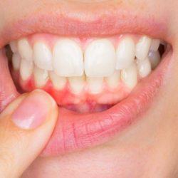 Parodontite chronique : causes, symptômes et traitements possibles